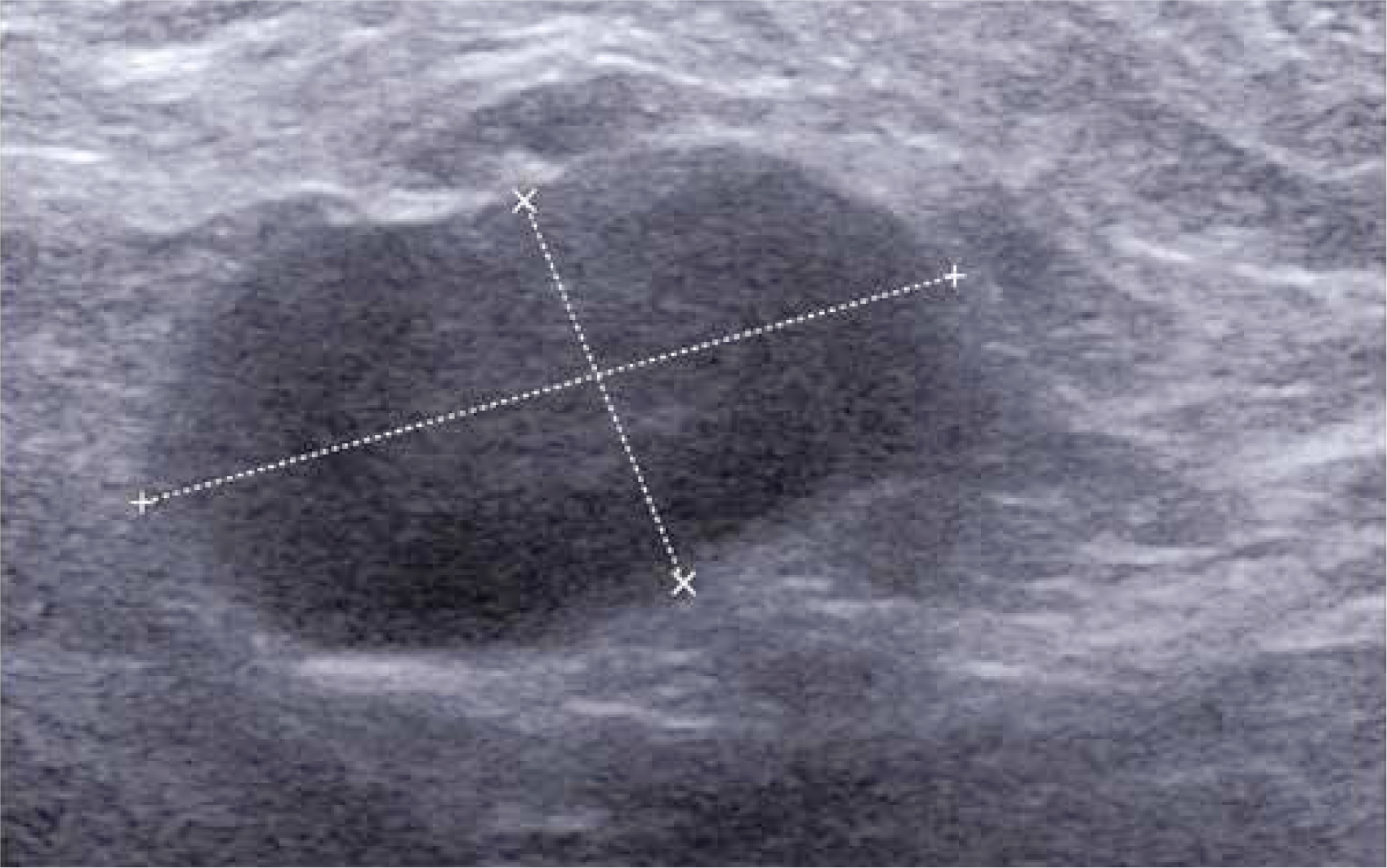 The Role Of Ultrasound And Lymphoscintigraphy In The Assessment Of