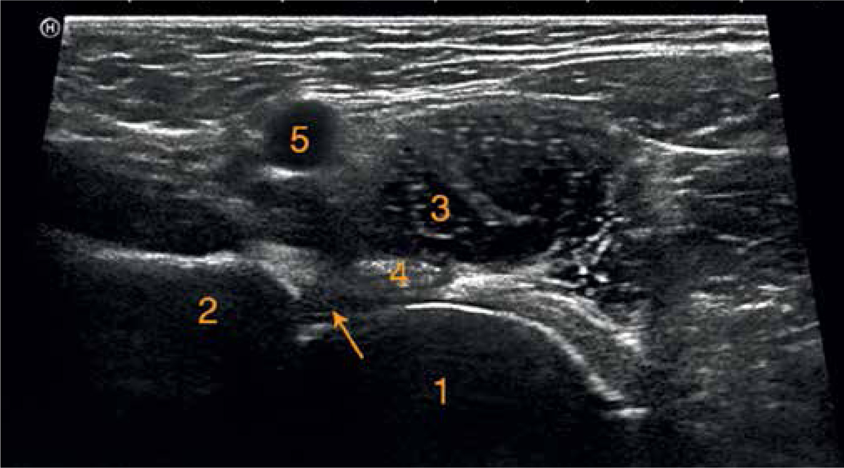 Internal snapping hip syndrome in dynamic ultrasonography